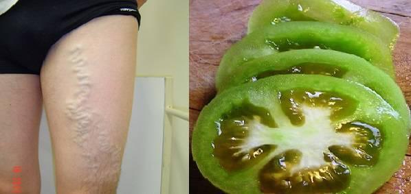 domates-ile-mucize-varis-tedavisi