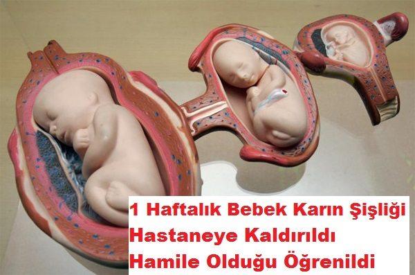 article-fetus-in-fetu-condition