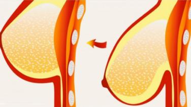 Yoğurt Kürü İle Göğüslerinizi Dikleştirin