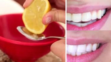 1 Dakikada Dişlerinizi Beyazlatın