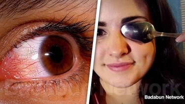 Kanlı Gözlere Soğuk Kaşık