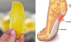 Ayağınıza Limon Sarıp Yatarsanız