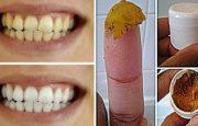 Doğal Diş Macunu İle 2 Dakikada Bembeyaz Dişler
