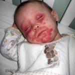 Egzama Hastası olan Çocuk Ölmek İstiyor