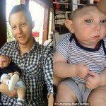 Anensefalı Bebek 1. Yaşını Kutladı