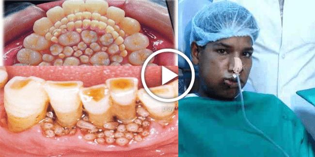 Hindistanlı Doktorlar 232 Diş Çektiler