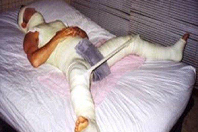Pitbul kendisine tecavüz eden adamın cinsel organını kopardı