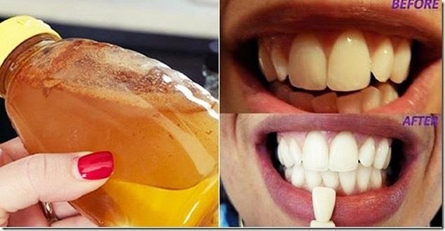 Sirke ile Dişleriniz 2 Dakikada Bembeyaz Olacak
