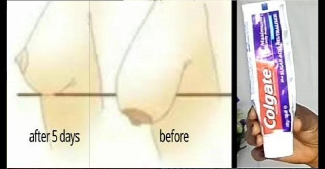 Diş Macunu ile Göğüslerinizi 5 Günde Dikleştirin