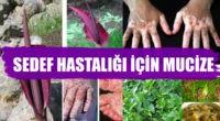 Sedef hastalığını bitiren mucize: Gavur Pancarı