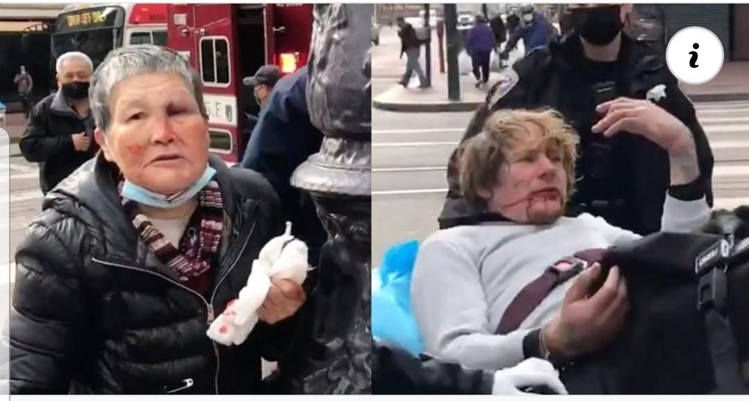 75 Yaşındaki Kadın Kendine Saldıran Adamı Hastanelik Etti